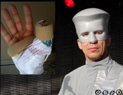 Devo reschedules California concerts canceled after Bob Mothersbaugh sliced thumb open